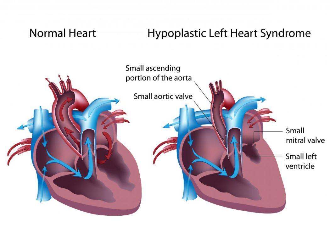 fetal syndromes hypoplastic left heart syndrome